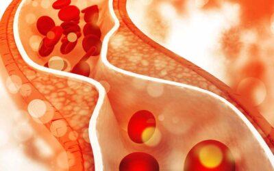 Grenzen zijn zoals cholesterol